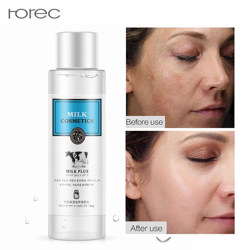 Milk Brighten Toner Moisturizing Skin Care Essence Anti Wrinkle Ageless Acne Treatment Whitening Blemish Remove Blackhead 120ml