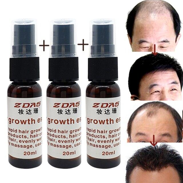 3 флакона средства от выпадения волос, ускоряет рост волос и активирует рост новых волос. Обладает лечащим эффектом.