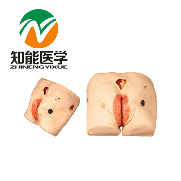 BIX-H10 Senior Decubitus Pressure Ulcers Bedsore Nursing Model G093
