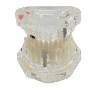 Image 1 - Dental Zähne Modell Implantat und Restaurierung Modell Transparent Studie Analyse Demonstration Zähne Modell Mit Restaurierung Brücke