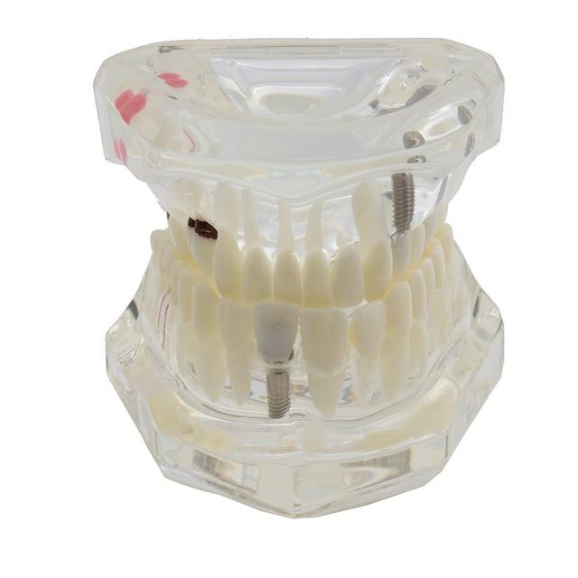 Dental Zähne Modell Implantat und Restaurierung Modell Transparent Studie Analyse Demonstration Zähne Modell Mit Restaurierung Brücke