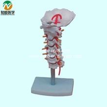 Cervical Carotid Artery Occipital Intervertebral Disc And Nerve Model BIX-A1014 G179