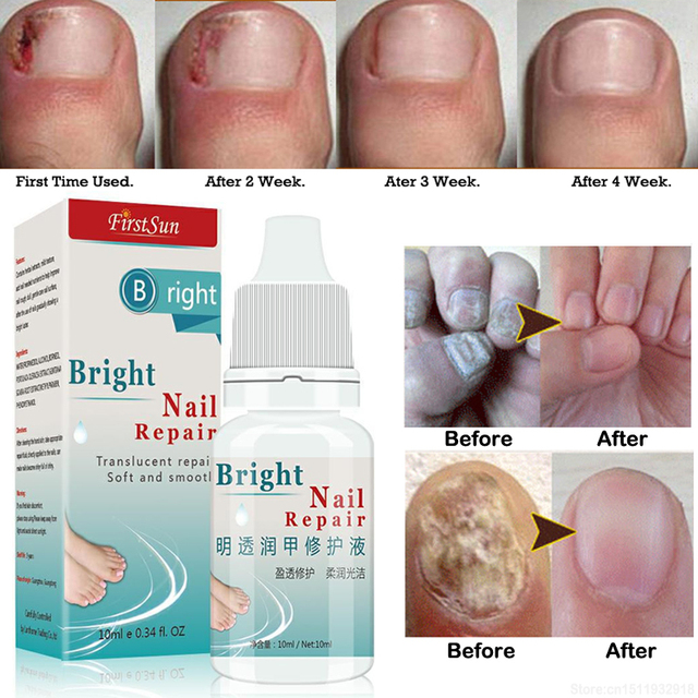 10ml Nail Fungus Treatment Cream Onychomycosis Paronychia Anti ...