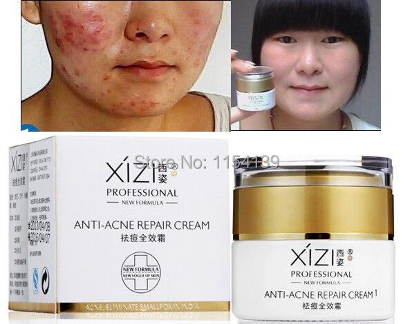Security Acne Acne Scars Medicineacne Treatment Women Mens Acne Cream