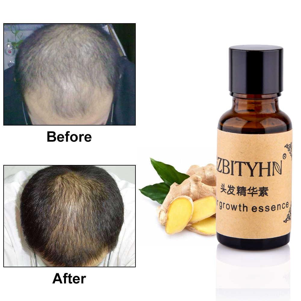 Средство для роста волос жидкость ускоренный рост волос натуральный экстракт имбирь рост волос быстрее масло против выпадения волос-потеря питательный 20 мл