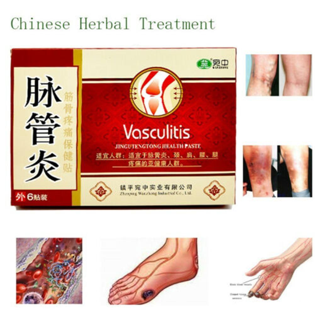 6PCS Chinese Natural Traditional Spider Veins Varicose Treatment Cure Plaster Varicose Veins Vasculitis Herbal Medicine Patches