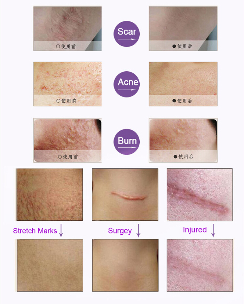 US $4 98 |Aliexpress com : Buy Face Acne Scar Removal Cream Stretch Marks  Remove Scar Treatment Essential Oil Heal Injury Surgery Scars 10ML from