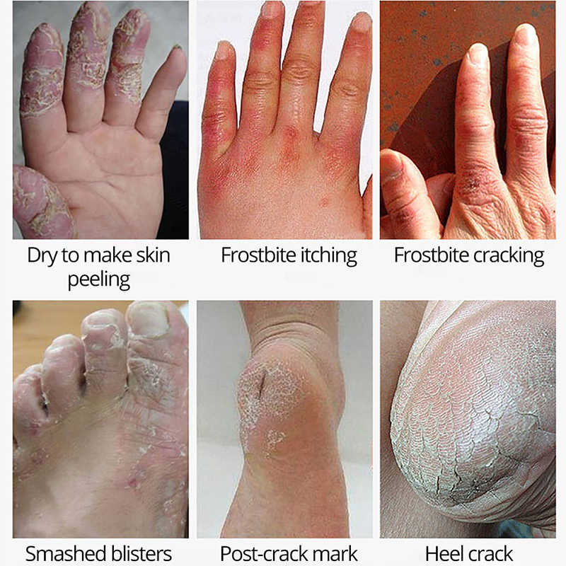 BEACUIR زيتية لشكل الحصان اليد القدم كريم إصلاح تبييض الجلد ترطيب تليين مكافحة تشقق مضاد للجراثيم ندبة قدم الرعاية