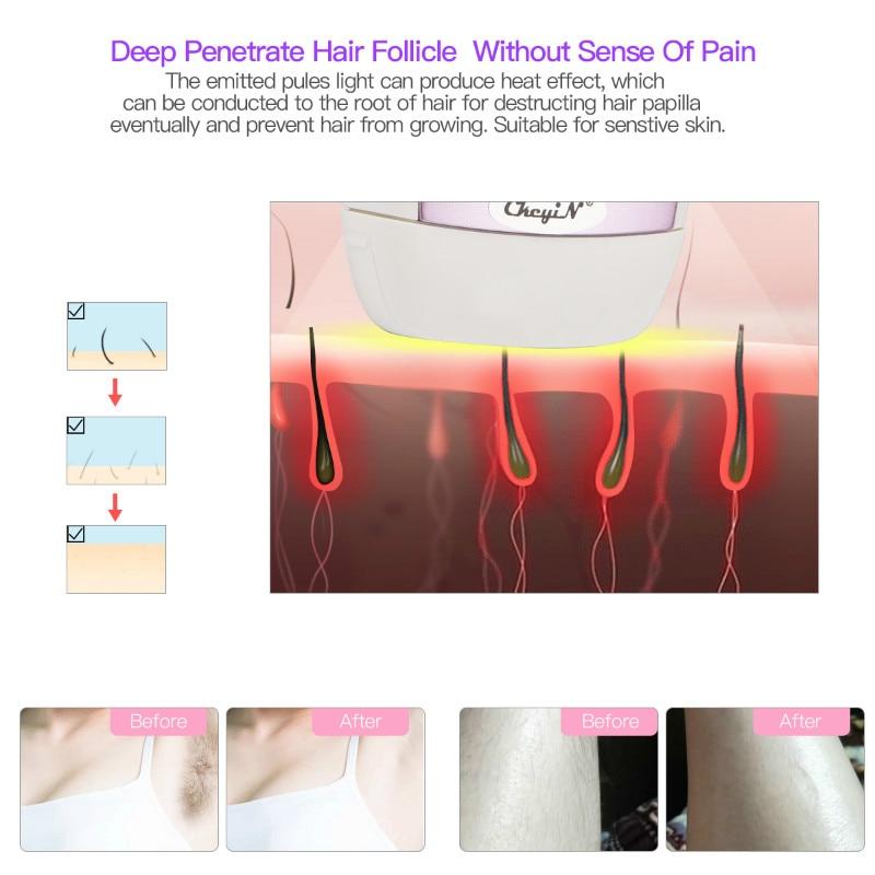 لنزع الشعر الحلاقة بالليزر 4