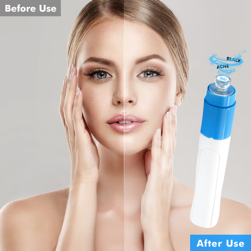 Drop ship Blackhead Remover Vacuum Acne Remover Pore Cleaner Skin Facial Cleanser Kit Exfoliating Cleansing Facial Beauty tool 5