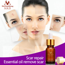 New 10ml Anti Acne Spots Scar Repair Essential Oil Lavender