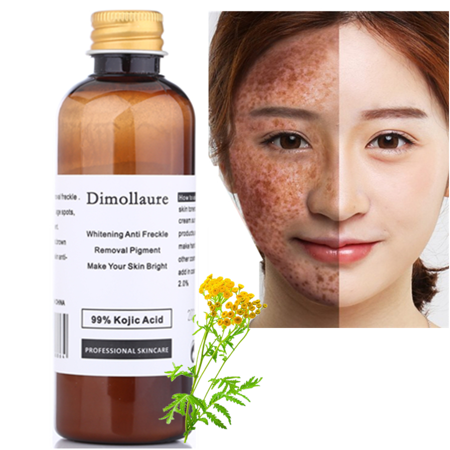 Dimollaure 50g puro 99% Cogico Acido cura del viso sbiancamento crema di rimozione Lentiggine melasma Acne Macchie di pigmento scottature Melanina