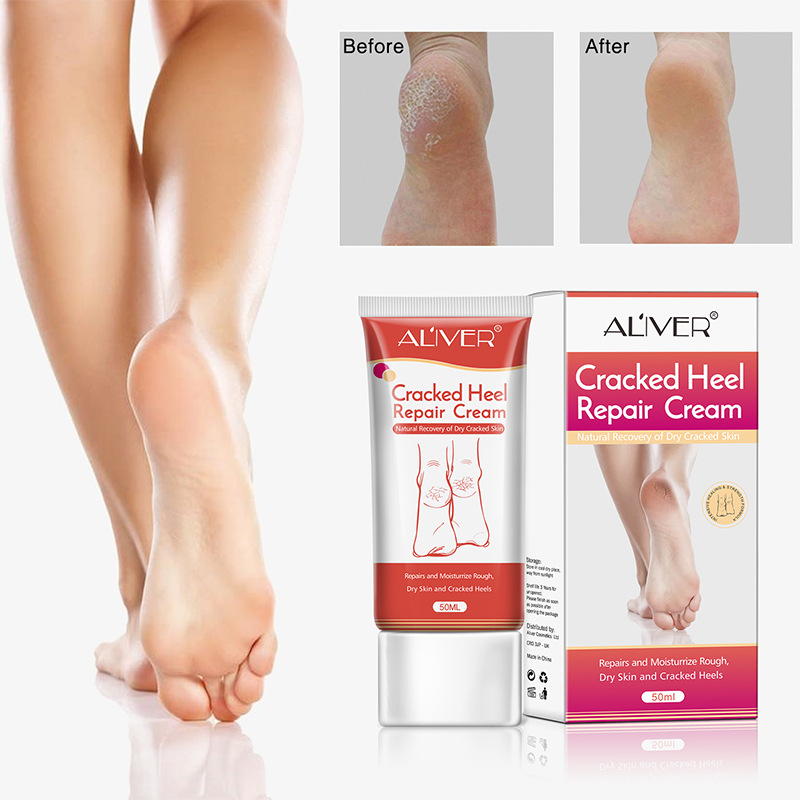low priced best value presenting Cracked Heel Repair Cream For Rough Dry Cracked Chapped Feet Remove Dead  Skin Soften Foot Care Cream 50ml