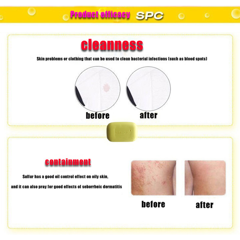 High Quality 84g Sulphur Soap Dermatitis Fungus Eczema Anti Bacteria Fungus Skin Care Bath Whitening Soaps Products Hot Sale Bath & Shower