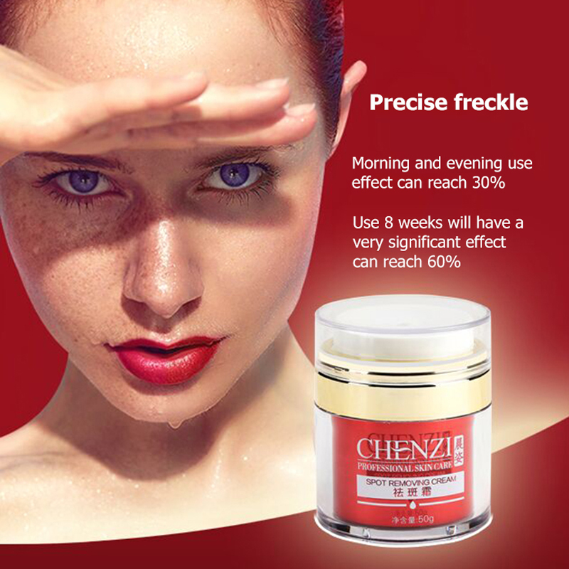 2 Bottles/lot Authentic Freckle cream Herbal dark spot remover for face Chloasma Melanin Removing freckle removal Skin Whitening