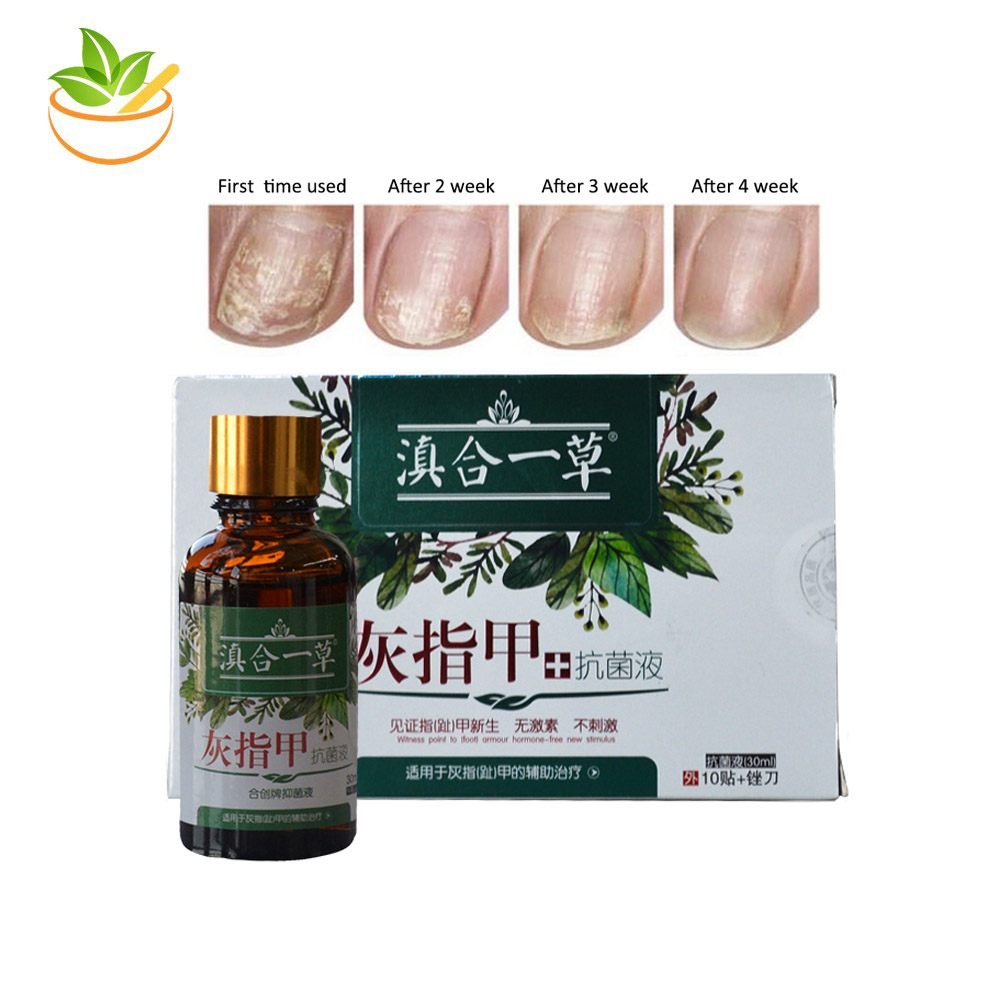 2 PCS Anti Fungal Treatment Nail Care Serum Onychomycosis Paronychia Infection Herbal Toe Finger Nails Health Beauty Accessories