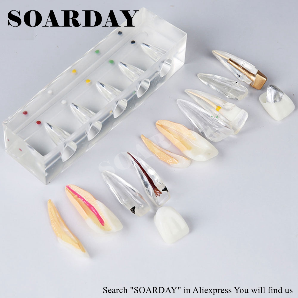 SOARDAY Endodontic Restoration Model Teaching Practice Dentist Patient Communication Model Odontologia Dentistry soarday endodontic restoration model teaching practice dentist patient communication model odontologia dentistry