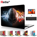For Macbook Pro 13 15 Case A1989 A1990 Touch bar Left and Right Brain Hard Case Cover For Mac book Air Pro Retina 13 New A1932