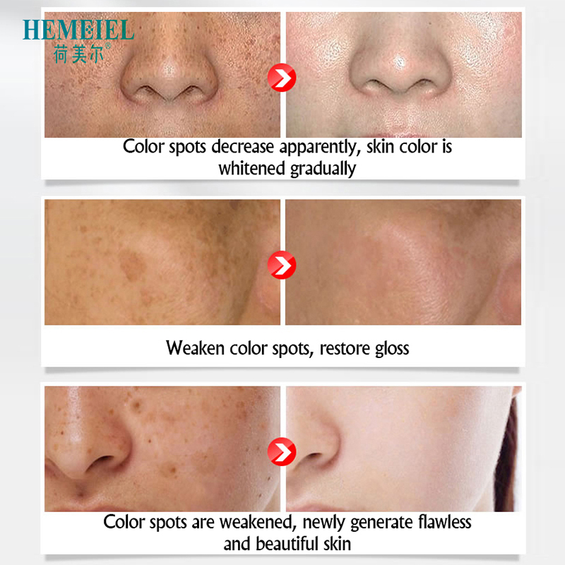 HEMEIEL Strong Whitening Cream Fade Freckle Scar Dark Spots Corrector Face Cream Melanin Blemish Removal Skin Care Essence 15ml in Facial Self Tanners Bronzers from Beauty Health