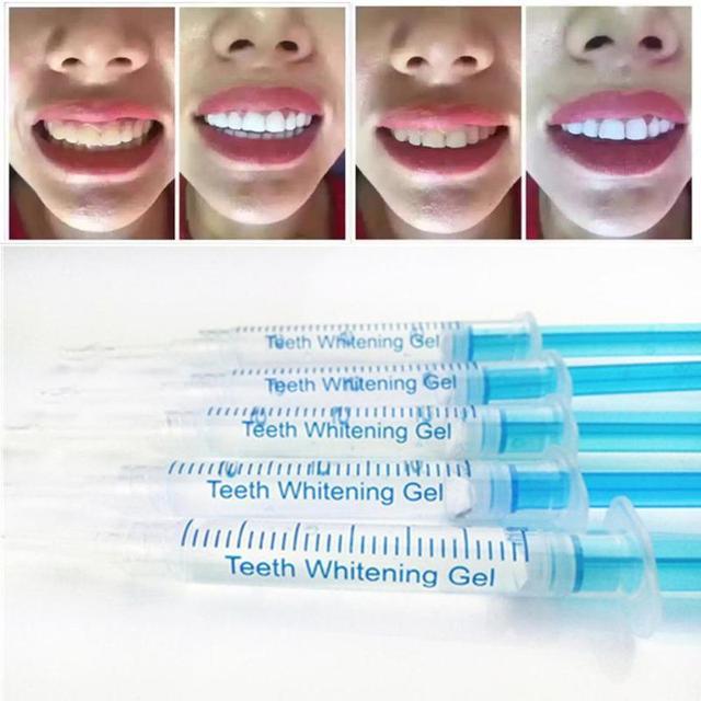 2 Pcs Sorrisos Brancos Brilhantes Profissionais Dentes Branqueamento