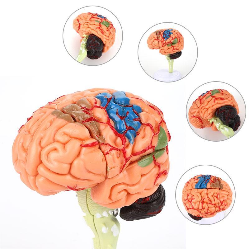 4D Disassembled Anatomical Brain Model Of Human School Educational Anatomy Medical Brain Model Anatomical Teaching Tool
