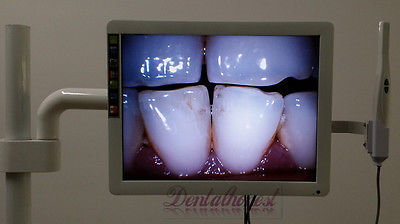 "Dental 8-LED Intraoral Camera with 17"" LCD Monitor and Dental Mount Holder"
