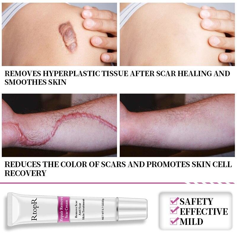 RtopR Acne Scar Stretch Marks Remover Cream Skin Repair Face Cream Acne Spots Acne Treatment Blackhead Whitening Cream Skin Care 3