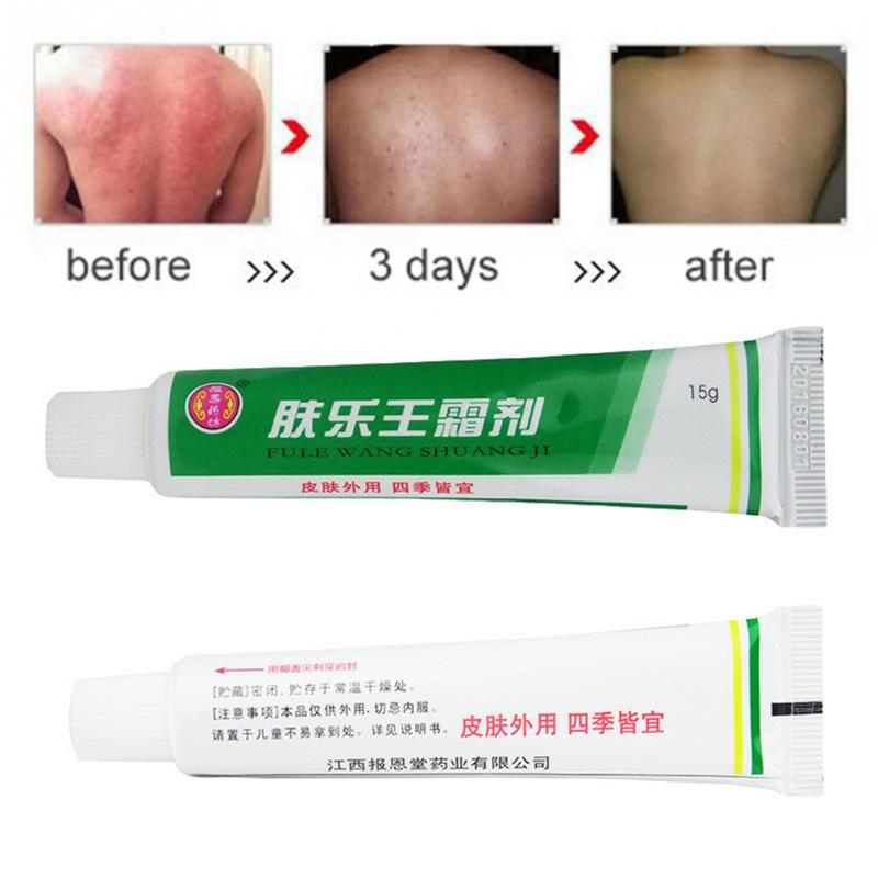 Chinese Herbal Skin Topical Antipruritic Ointment Cream Analgesic Balm Ointment Psoriasis Cream Health Tool Set