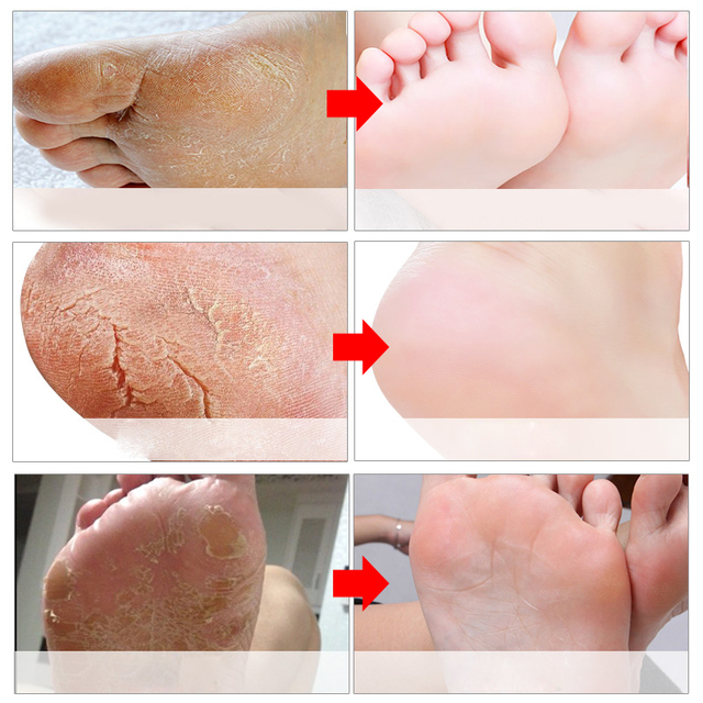2Pairs=4Pcs Exfoliation Feet SPA Dead Skin Cuticle Remover Feet Care For Heels Pedicure Socks Foot Mask for Legs Foot Patch Skin Care