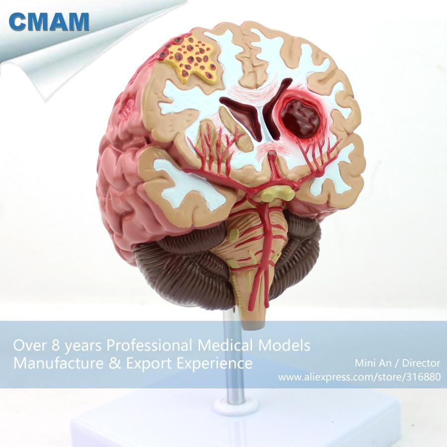 12408 / Human Anatomy Disease of the Brain Teach Model,  Medical Science Educational Teaching Anatomical Models