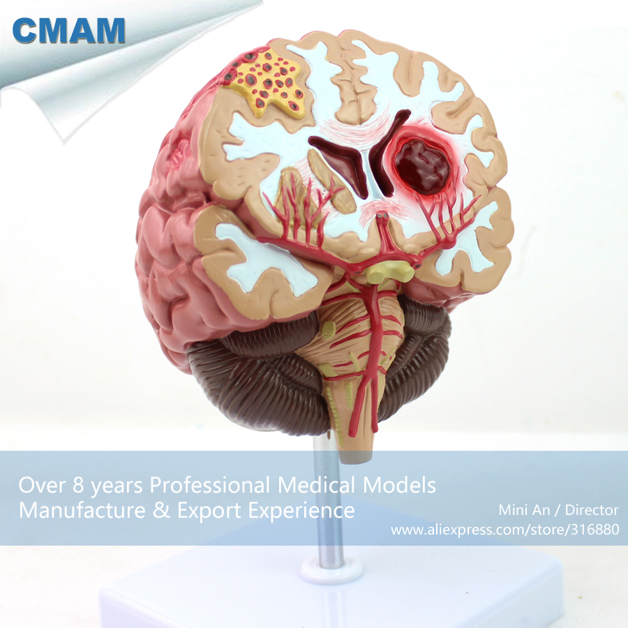 CMAM-BRAIN10 Human Anatomy Disease of the Brain Teach Model,  Medical Science Educational Teaching Anatomical Models human anatomical duodenum gall bladder disease anatomy medical model teaching resources