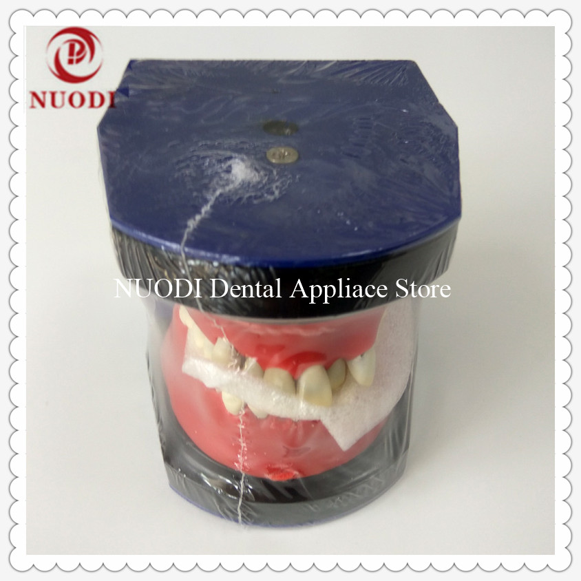 Dental Orthodontic traning teeth model/Typodont practice teaching teeth model/Metal Orthodontic Study teeth model dental prosthesis teeth model with metal ceramic bracket brace dentist model denture teaching study model technician tools