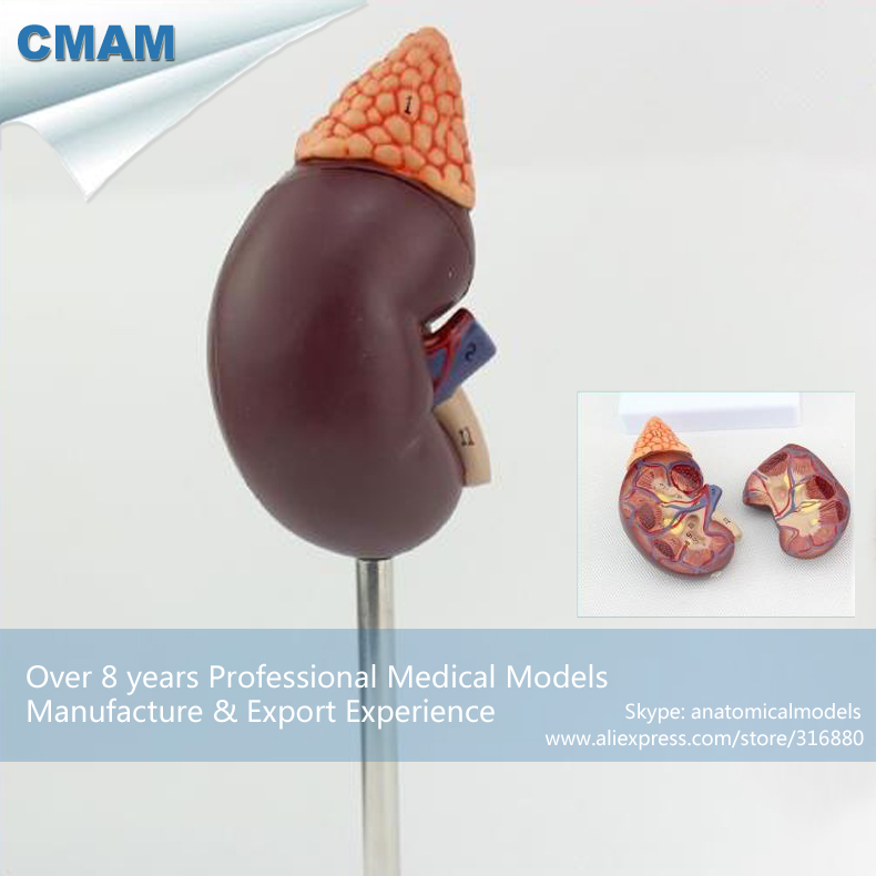 12433 / CMAM-KIDNEY04 Life Size Human Kidney with Adrenal Gland Anatomy,  Medical Science Educational Teaching Anatomical Models12433 / CMAM-KIDNEY04 Life Size Human Kidney with Adrenal Gland Anatomy,  Medical Science Educational Teaching Anatomical Models