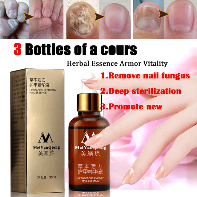 MeiYanQiong 30g Fungal Nail Treatment Feet Care Essence Nail Foot ...