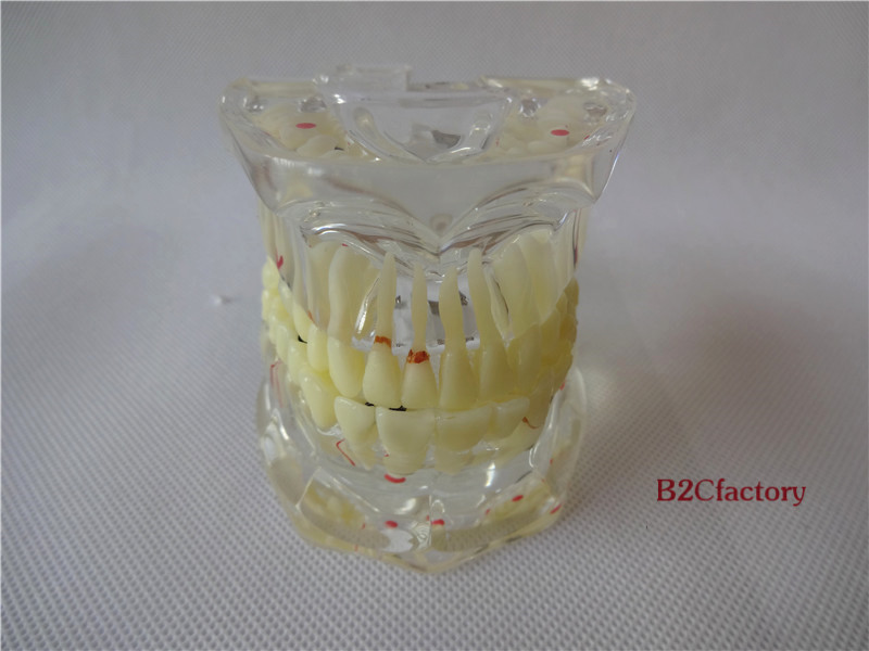 Dental Implant Disease Tooth Pathological Extrusion Missing Teeth Model 4001 dissected model of dental disease dental disease pathology decomposition model