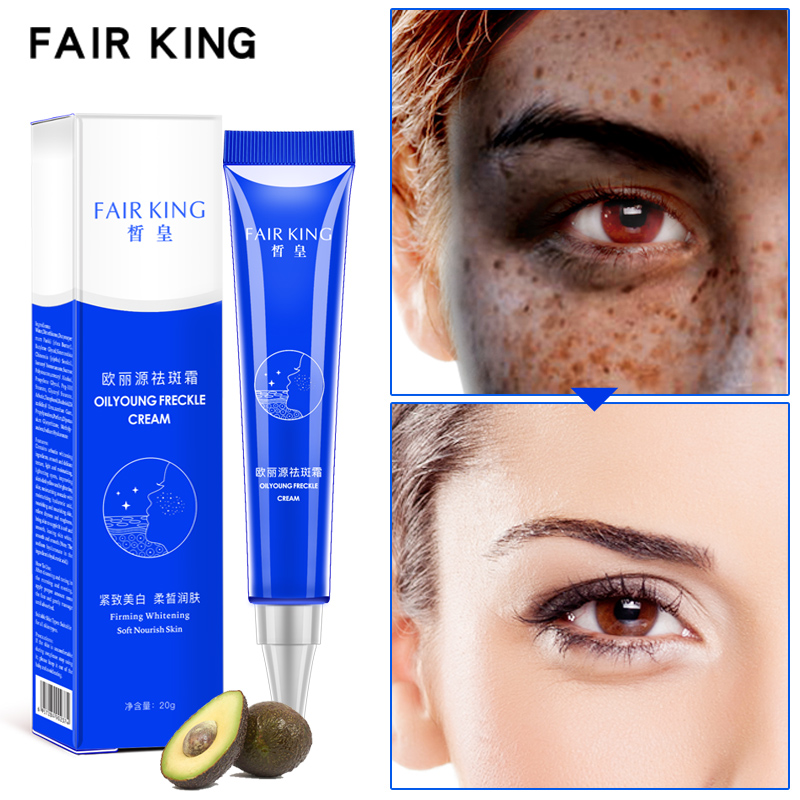 Strong Effects Powerful Whitening Freckle Cream 20g Remove Melasma Acne Spots Pigment Melanin Face Care Cream