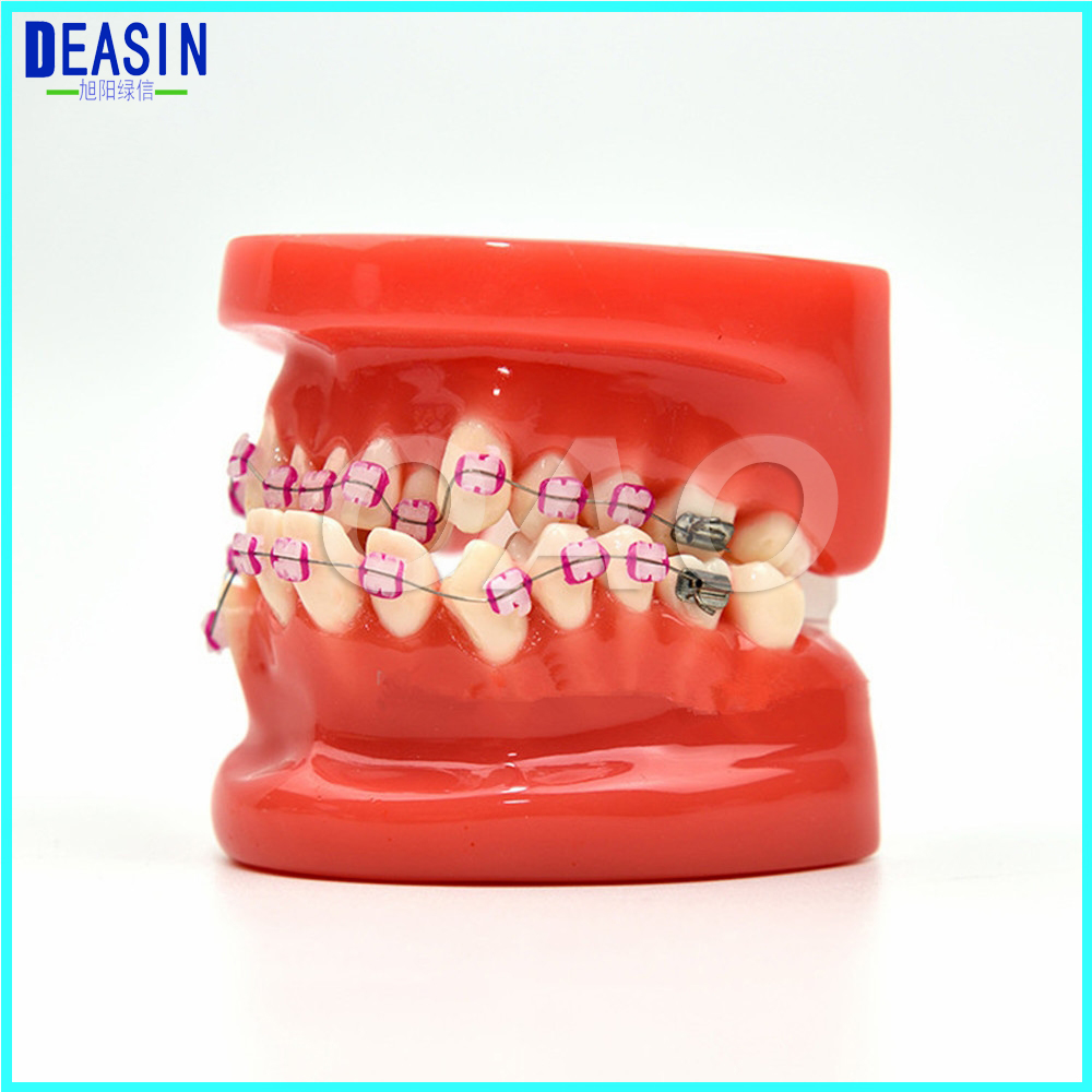 Dentist patient student learning model Orthodontists model With metal brackets Irregular tooth Ortho Metal transparent dental orthodontic mallocclusion model with brackets archwire buccal tube tooth extraction for patient communication