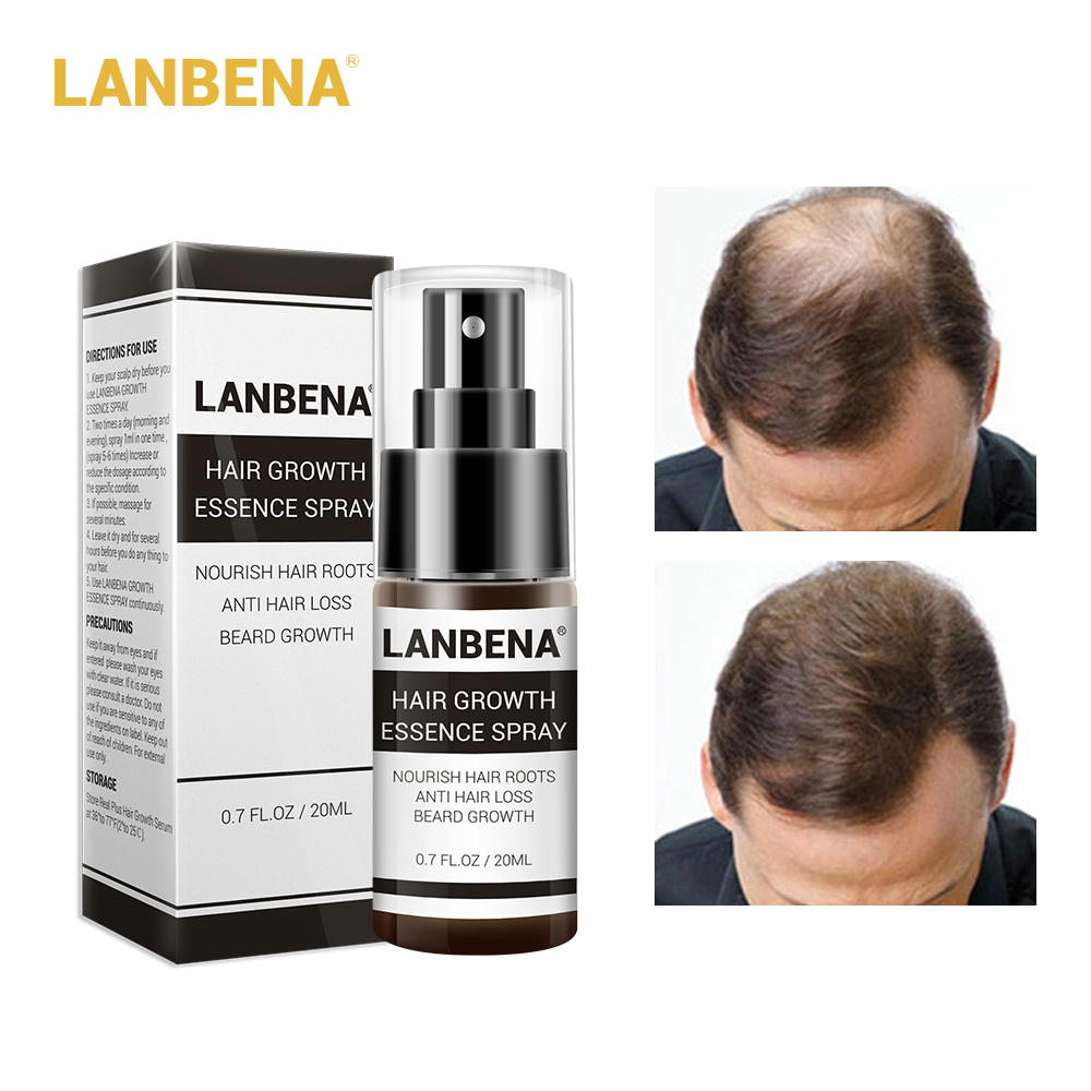 LANBENA Hair Growth Essence Spray Product Preventing Baldness Consolidating Anti Hair Loss Nourish Roots Easy To Carry Hair Care Karachi