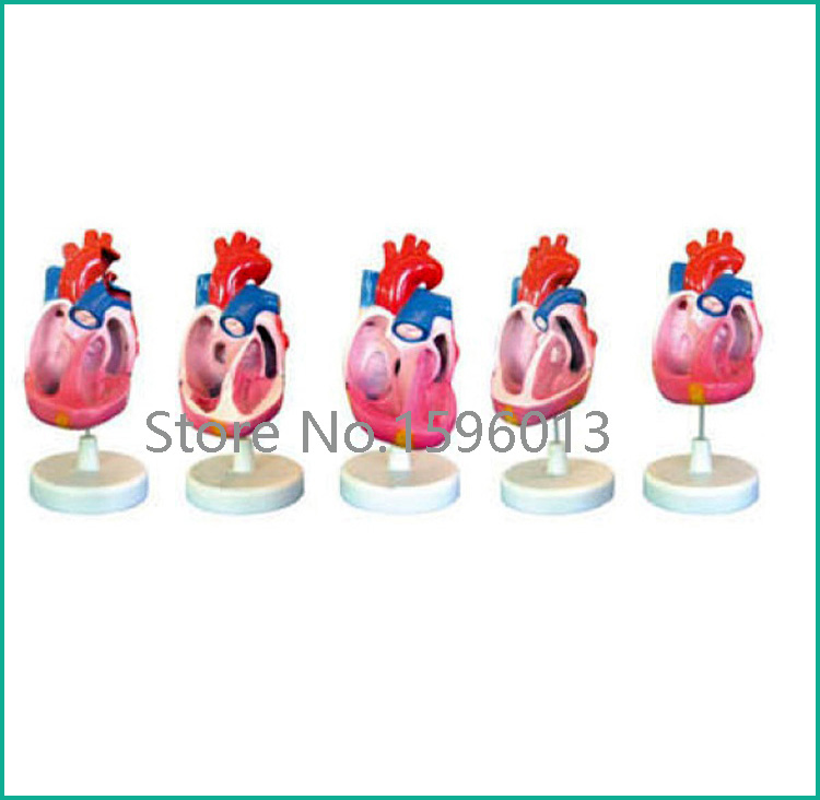 Congenital heart malformations model 5 parts,Tetralogy of Fallot model, TOF model,human heart model