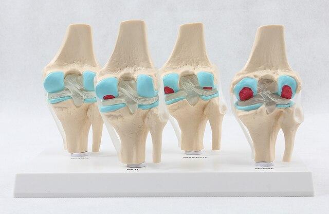 Anatomische Menschlicher Degenerative Kniegelenk DiseaseSkeleton ...