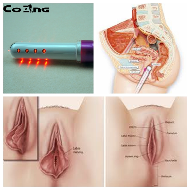 2017 new innovation  low level laser light therapy gynecological instrument treat loose vaginal instrument for woman home use mai spectrum mp110 laser marking instrument cast line instrument line level instrument whole sale retail
