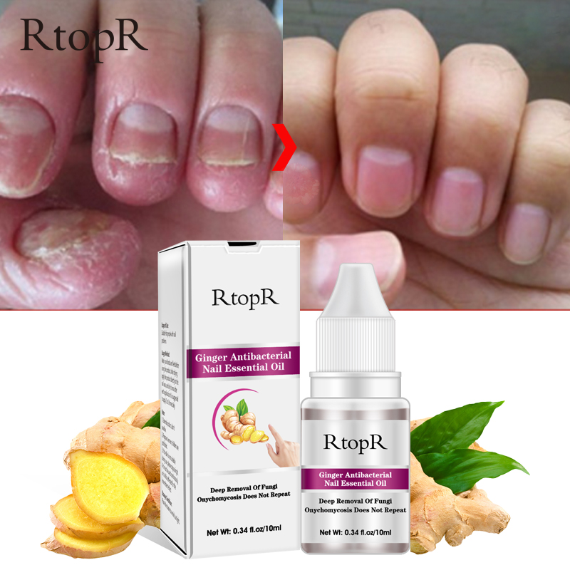 10ml RtopR Ginger Nail Repair Essential Oil Nail Treatment Remove Onychomycosis Toe Nails Nourishing Foot Nail Care	 TSLM1