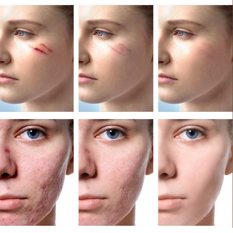 Dating iemand met acne littekens