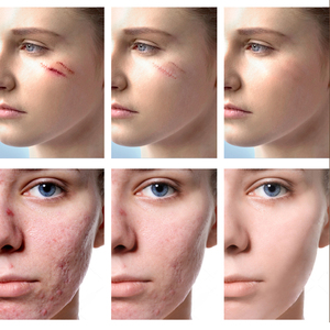 Image 4 - VIBRANT GLAMOUR Repair Scar Removal Cream Acne Scars Gel Stretch Marks Surgical Scar Burn For Body Pigmentation Corrector Care