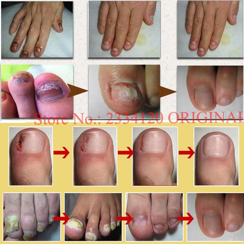 Как удалить грибок ногтей и стоп