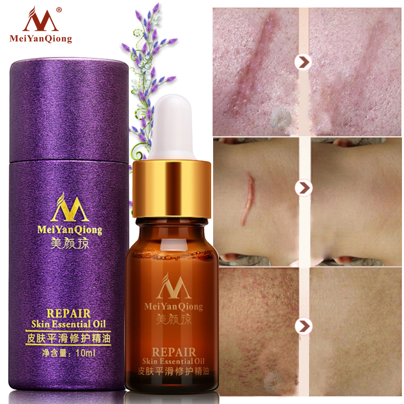 Scar Repair Skin Essential Oil Lavender Essence Natural Pure Remove Ance Burn Strentch Marks Scar Removal Face Skin Care Tool