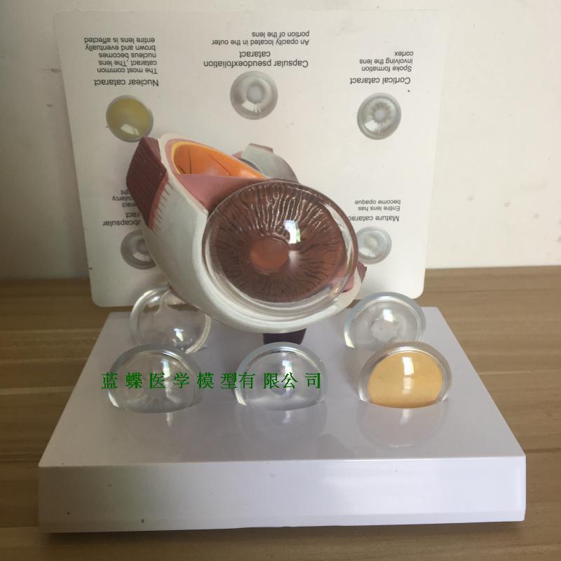 Human Ocular Lesion Model Glaucoma, Cataract Model Eye Enlargement Model Free Shopping