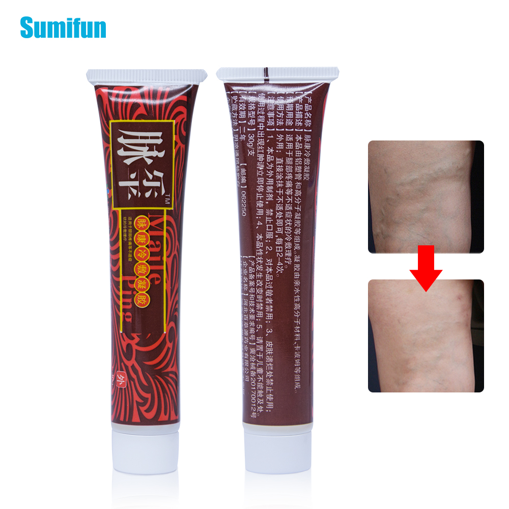 2pcs Varicose Veins Treatment Cream Ointment Vasculitis Phlebitis Spider Pain Varicosity Angiitis Removal Herbal Plaster D1733