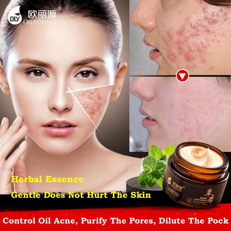 Crema de acné a base de hierbas contra la espinilla Manchas de acné - Cuidado de la piel - foto 2