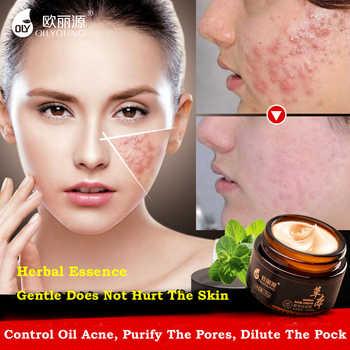 Herbal Acne Cream Anti Pimple Spot Acne Scars Blackhead Removal Cream Whitening Beauty Skin Face Care Creams Acne Treament